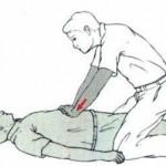 maniobra-de-heimlich-en-personas-inconscientes - copia - copia